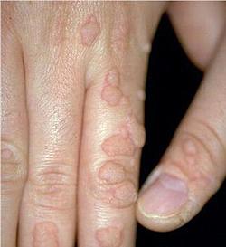 természetes gyógymódok a pinwormok kiküszöbölésére