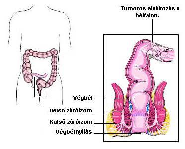 vastagbélpolip rák