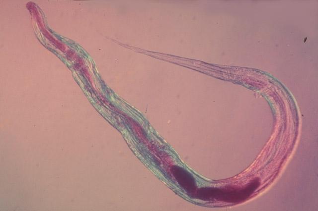 Bél paraziták kezelése uk, Bélgyulladás kezelése parazitákkal