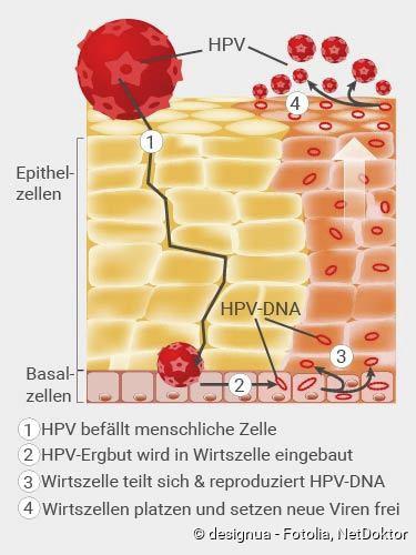 hpv vírus ansteckung)