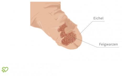 Papilloma warzen, Hpv infektion warzen,