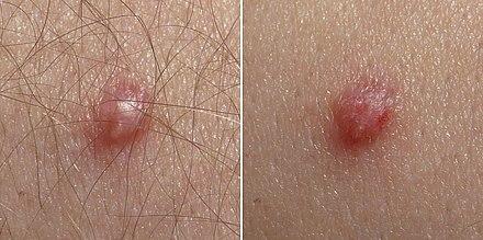 Hpv vírus ugyanaz, mint a herpesz. HPV tévhitek és tények