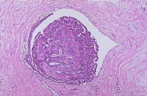 Veszélyes az emlőmirigy intraductal papilloma? - Fertőzés