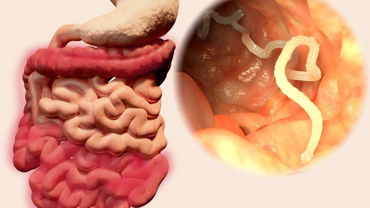 crijevni paraziták kódja ljudi)