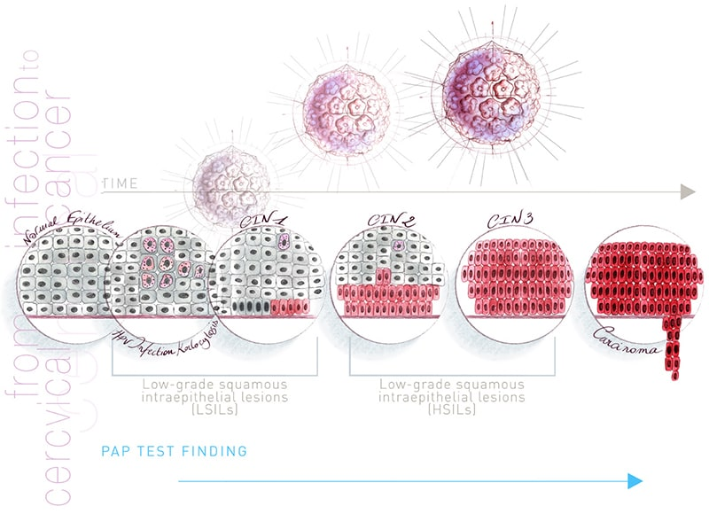 Hpv magas kockázatú és pap 3d, HPV és a méhnyakrák
