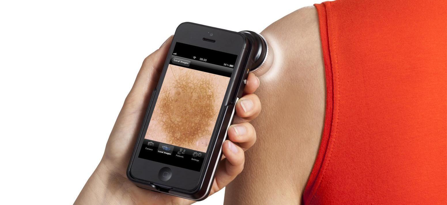 bőrrák képződik bélparaziták gyermekeknél természetes kezelés