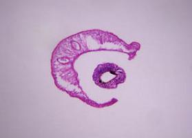 vizelet schistosomiasis i)
