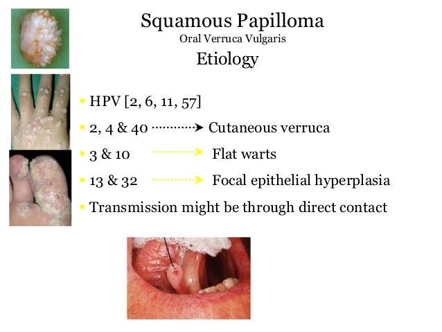 Immunszabályozás helmint paraziták által Helmint terápiás hízósejtek