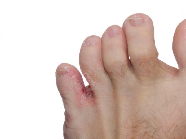 kemény bőrkeményedés a lábujjak között