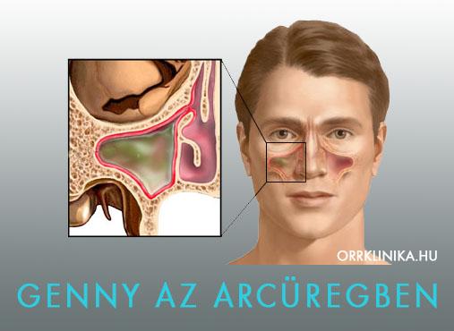 Krónikus arcüreggyulladás