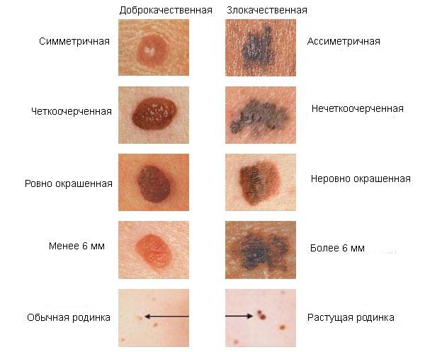 condyloma héjak