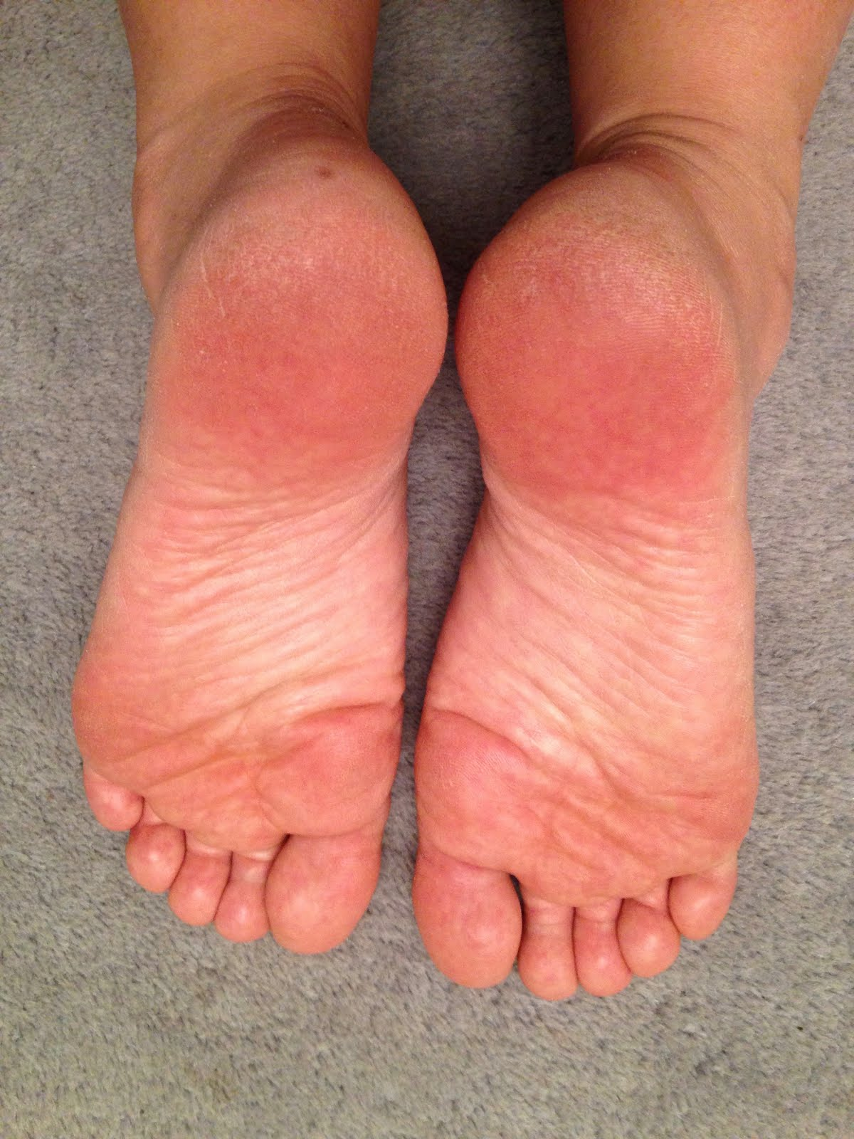 crack toe treatment reviews között