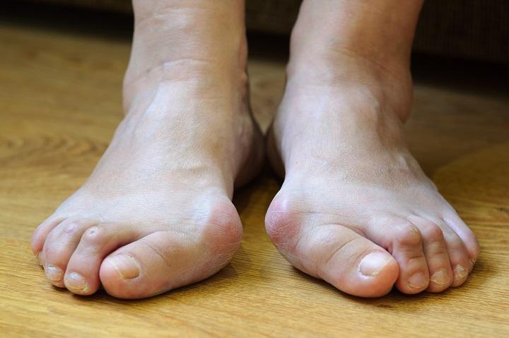 csökken a lábujjak között
