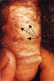 nemi szemölcsök a végbélnyílás férfiaknál papillomaviridae kórtörténet