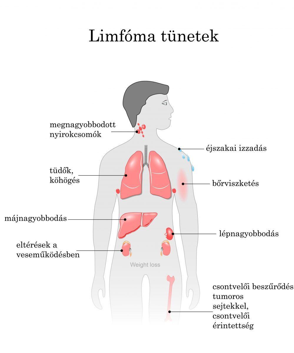 rák Hodgkin s lymphoma tünetei)