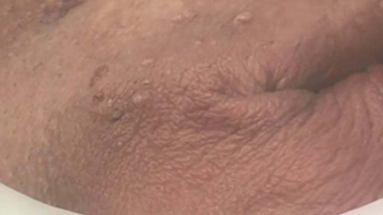 hpv vírus mennydörgés szemölcs az arcon vagy a bőrrákon