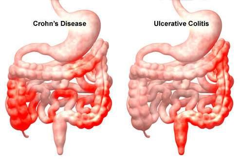 Vastagbél-divertikulum tünetei és kezelése