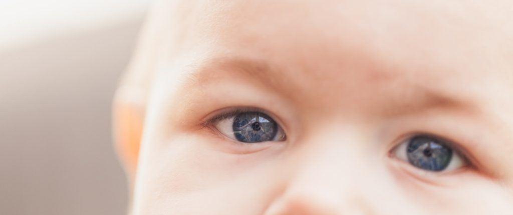 papilloma egy gyermek szeme alatt