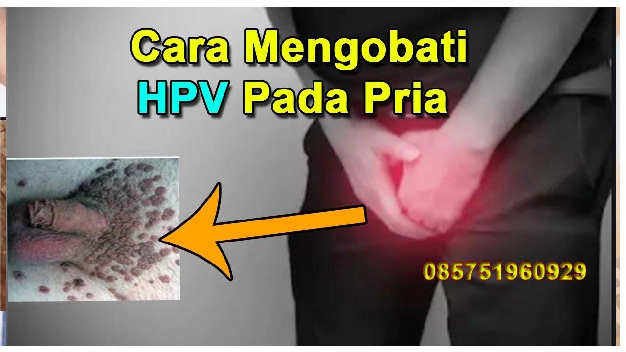 penyakit hpv pada lelaki