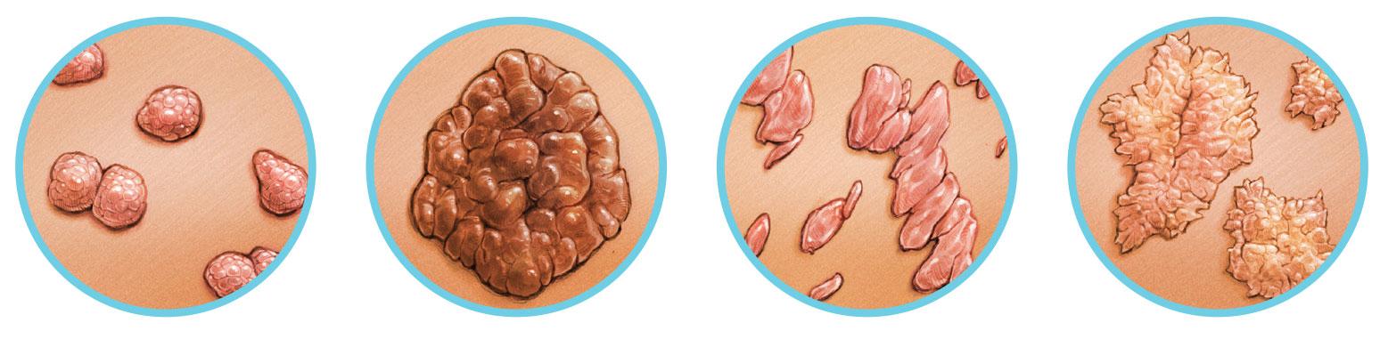 Nemi szervi szemölcs - Szemölcsök nemi szervek gyógyítása