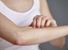 dysbiosis bőrproblémák