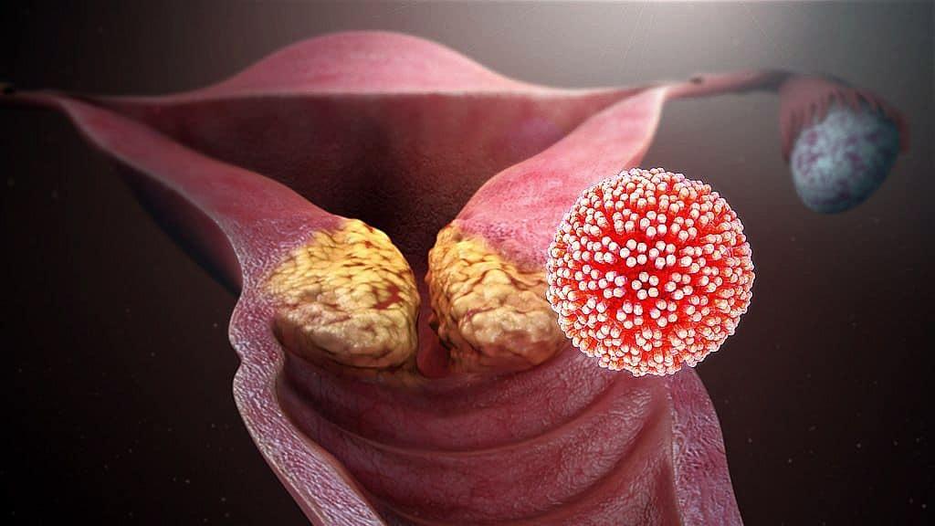 A papillomavírus szunnyadó Genitális szemölcsöket okoznak