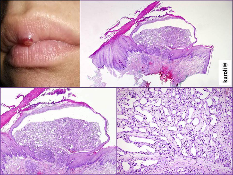 bőr papillomatosis szövettana