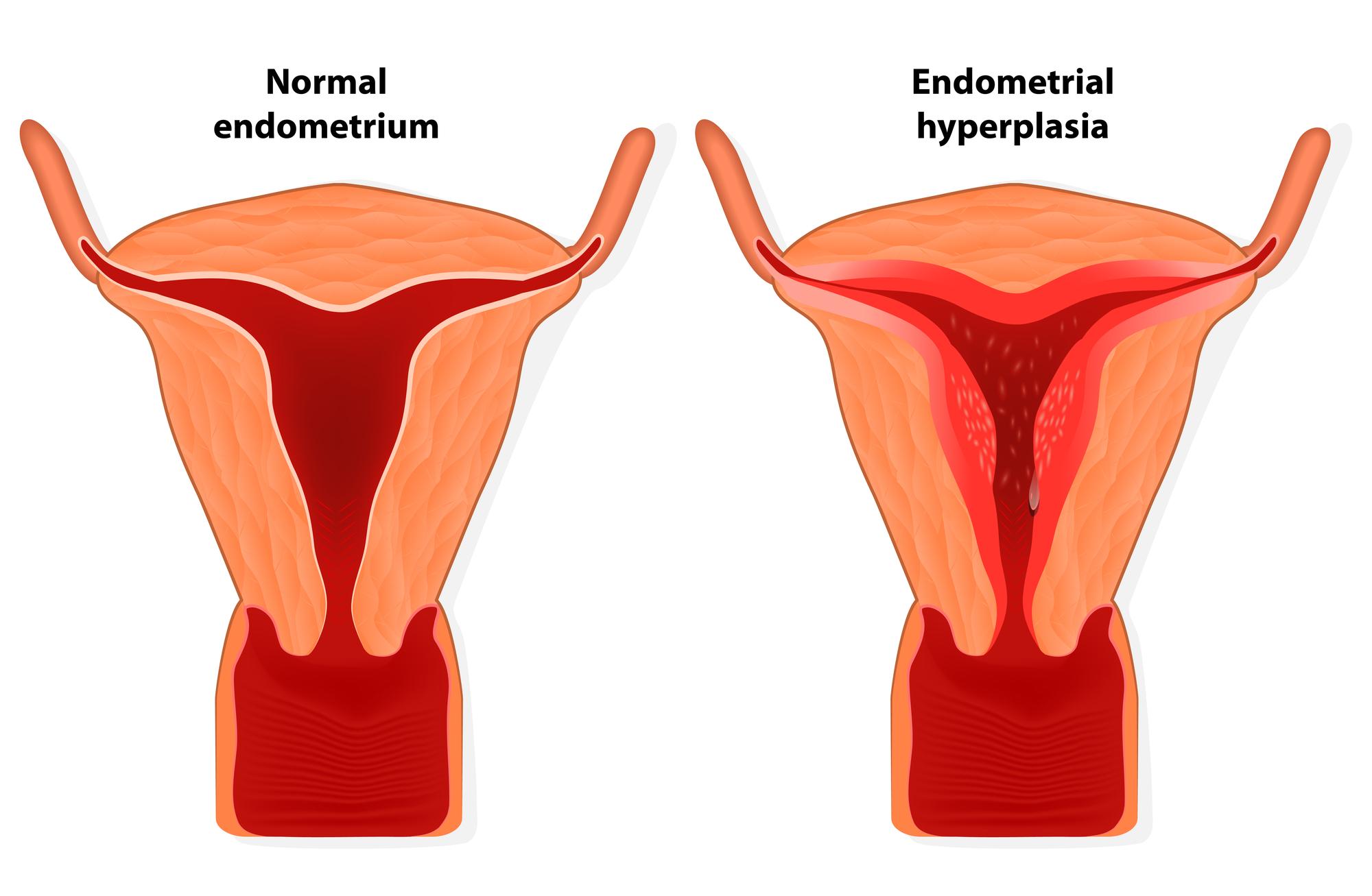 endometrium rák fiatal nő