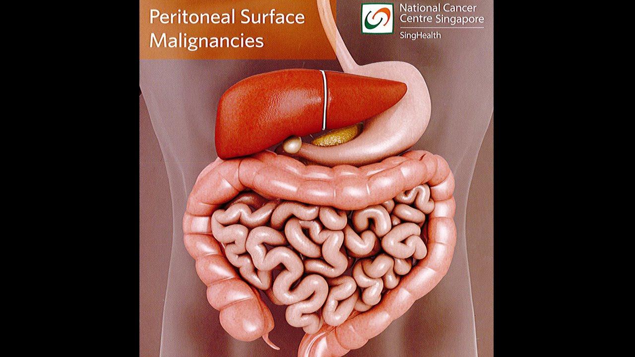 endometrium rák hipec