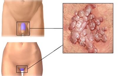 a genitális szemölcsök kezelése a végbélnyílás férfiakban)