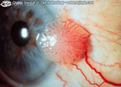 neoplazma papilloma