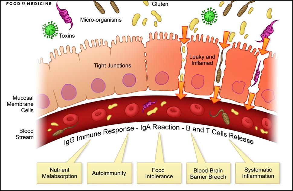 enterobiosis biomaterial hpv torokrákos blogok