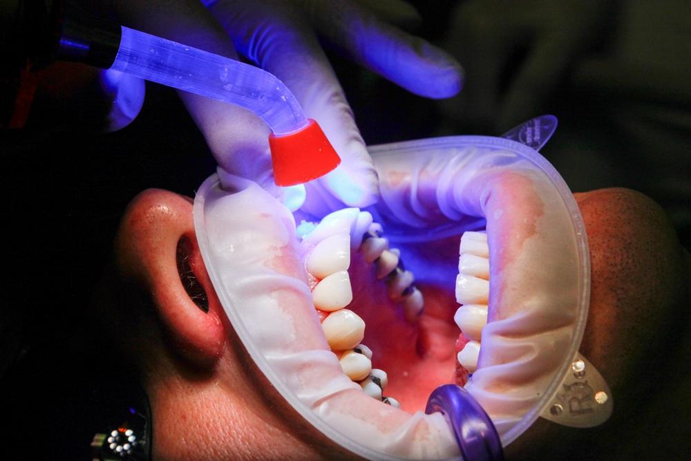 Módszerek a szájüregi rák megelőzésére
