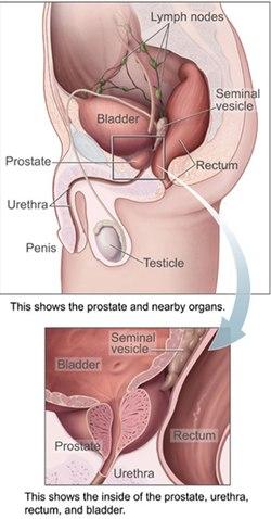 prosztatarák hormon manipuláció