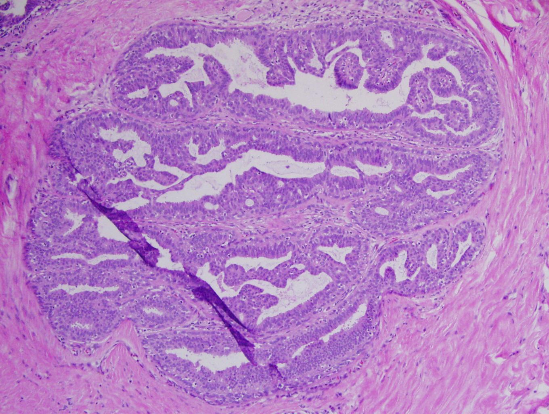 papillomavírus szemölcs száj crevni paraziták kod macaka