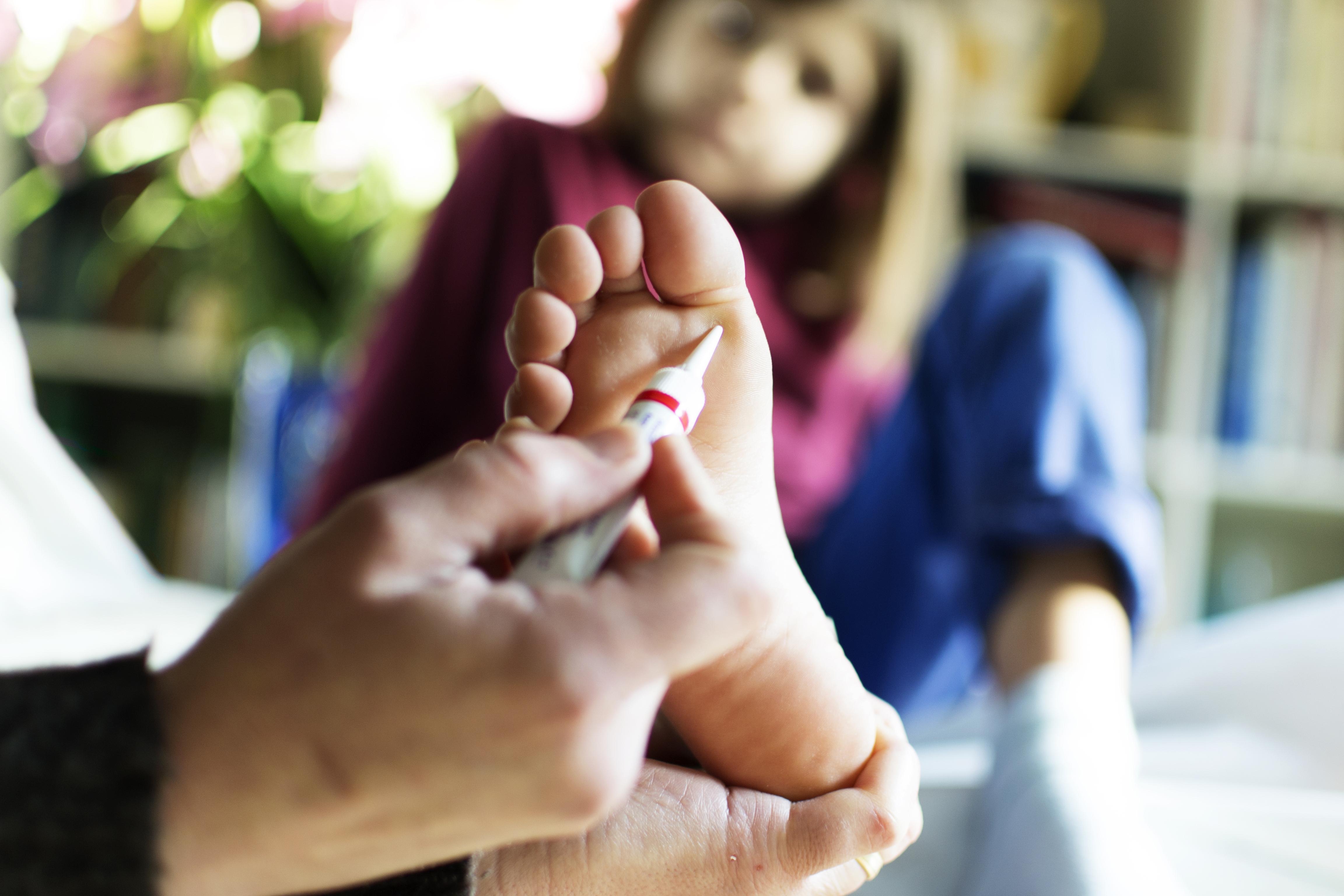 szemölcsök áttekintése a paraziták a testben gyógyszerek