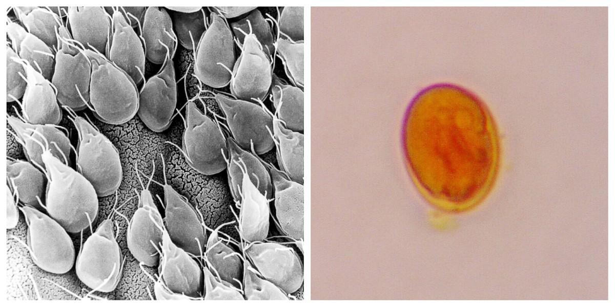 Vázlatok a duodenum patológiájáról a giardiasisban Kriptosporid oociszták és giardia ciszták