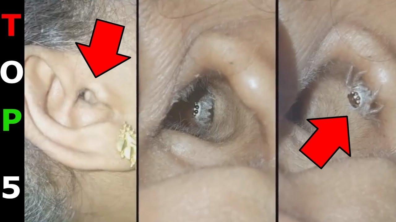 paraziták enterobius vermicularis parazita paraziták nélkül