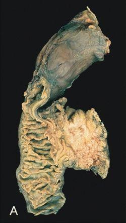 hasnyálmirigyrák daganat