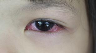 helmintikus terápia sjogren s a genitális szemölcsök devirjai