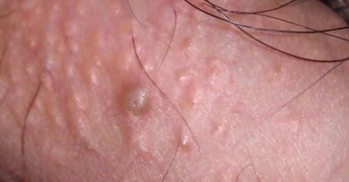 hpv minor jelentese korai bőrrák