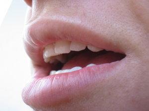 Squamous cell neck rák | Wofulo Hpv pozitív nasopharyngealis rák