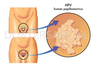 hpv vírus mannen genezen)