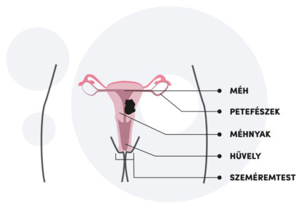 hpv vírus és endometrium rák)