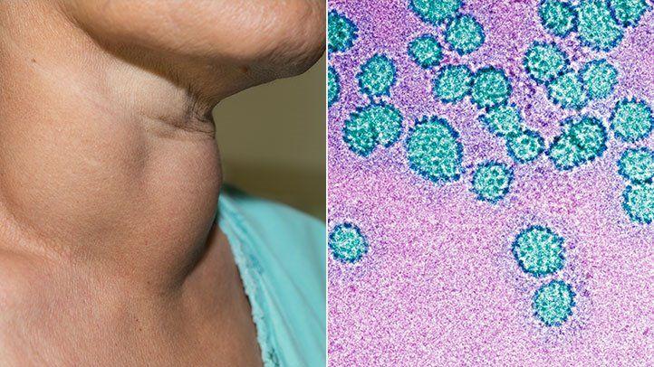 papilloma vírus és daganat