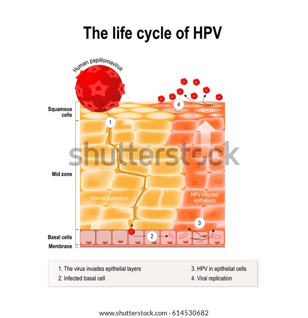 hogyan kezelik a giardiasisot? hpv és torokrák tünetei