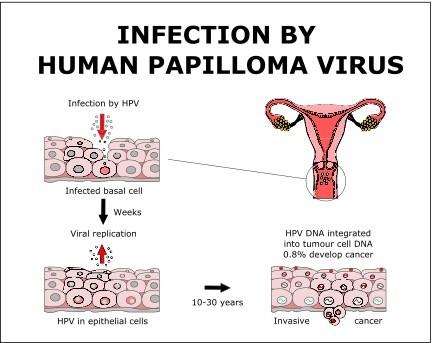 Human papillomavirus kezelese Papilloma kezelese hazilag,