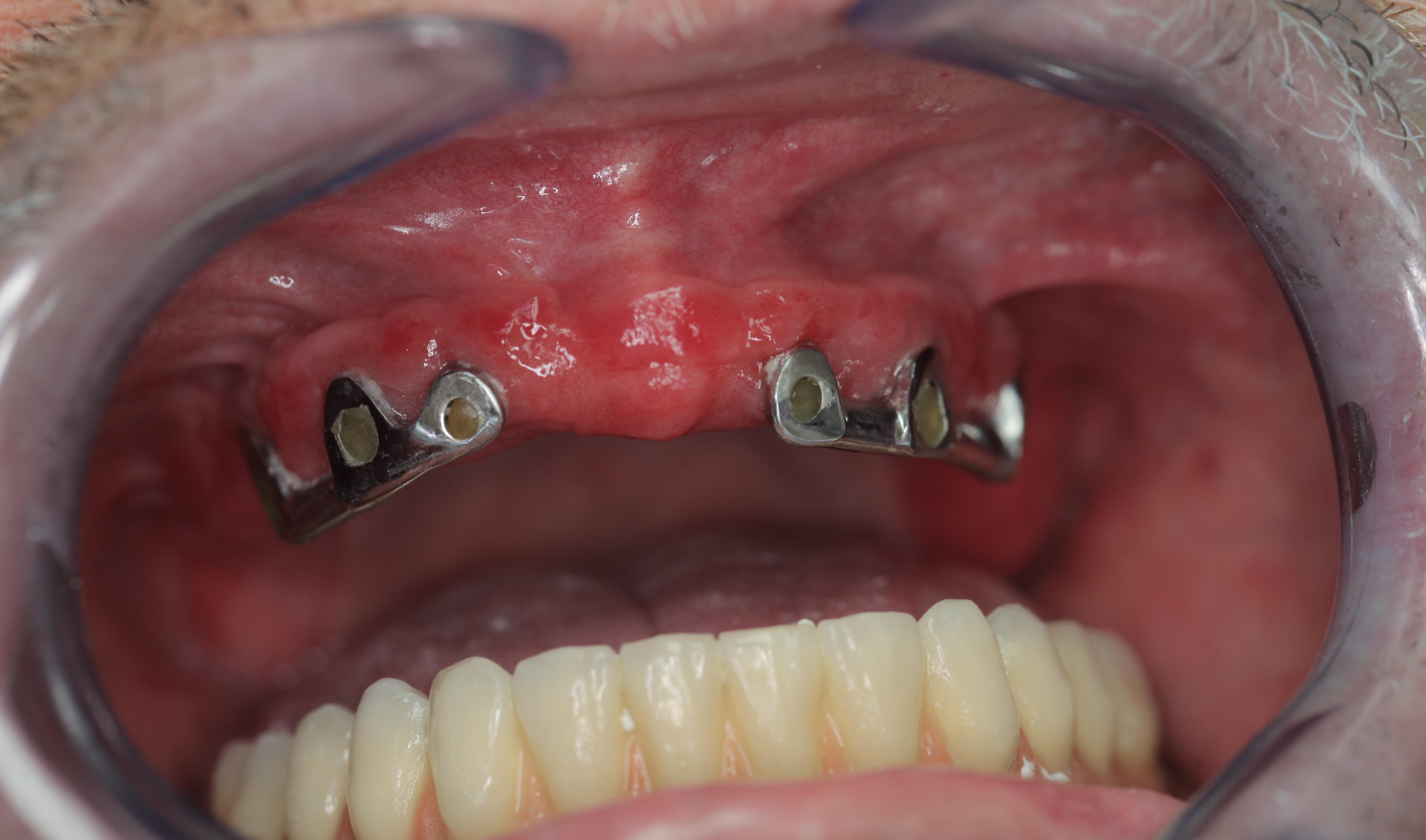 papillómák a szájnyálkahártyán hogyan kell kezelni cauterize szemölcsök