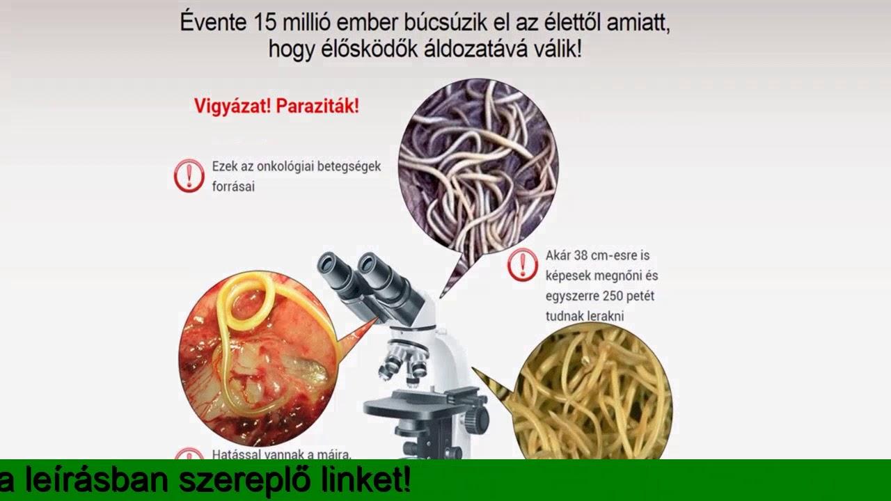 papillómák paraziták jelenlétében paraziták kezelése emberi tablettákban