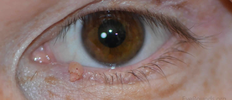 papilloma a szemhéjon, ahogy elmozdul